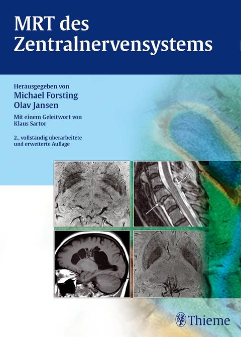MRT des Zentralnervensystems von Michael Forsting | ISBN 978-3-13 ...